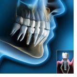 Implantologia 3D