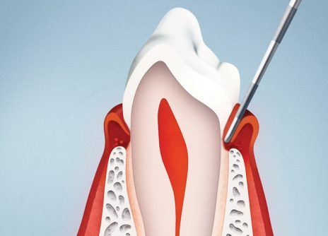 Parodontologia-Img