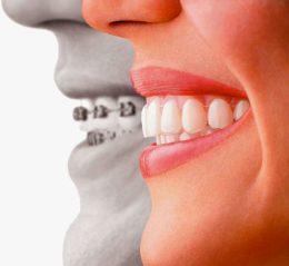 Prevenzione-Pre-Post-Ortodonzia